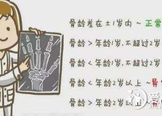 """骨龄很关键,莫等骨骺闭合才望""""个""""兴叹!"""