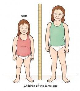 說說身材矮小的原因