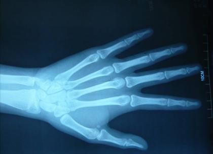 去医院拍摄骨龄片时要注意什么?