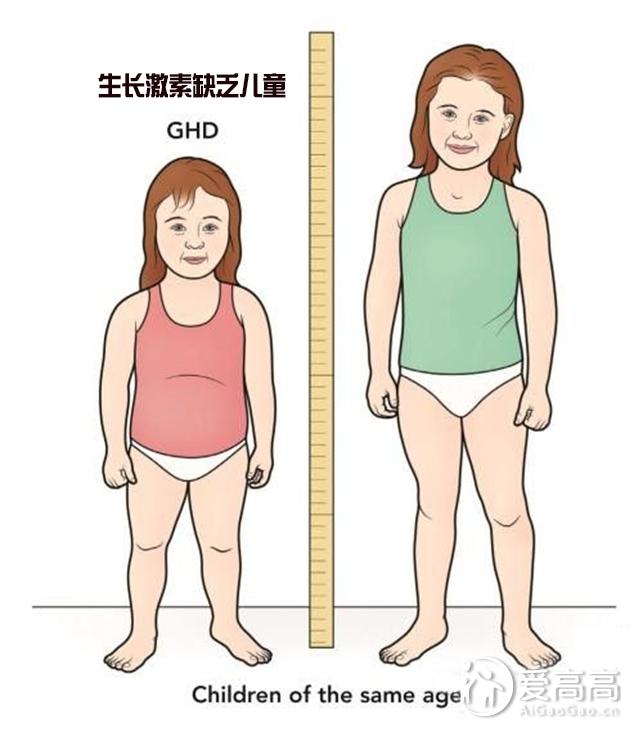 治疗矮小症 无需谈激素色变